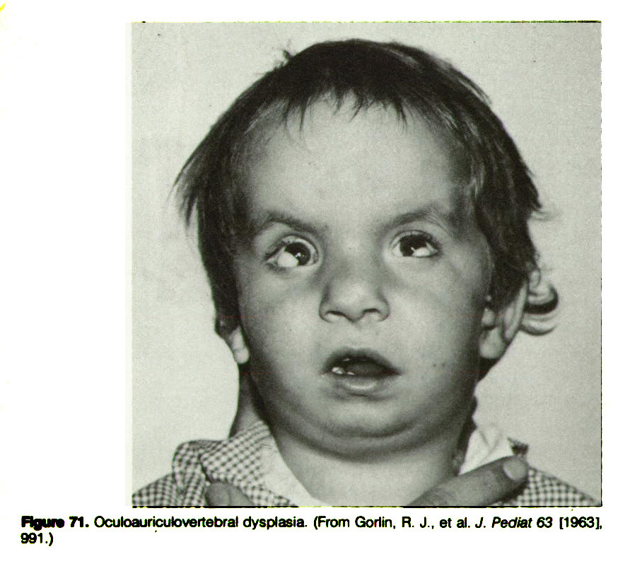 Figure 71. Oculoauricutovertebral dysplasia (From Gorlin, R. J., et al. J. Pediat 63 [1963], 991.)