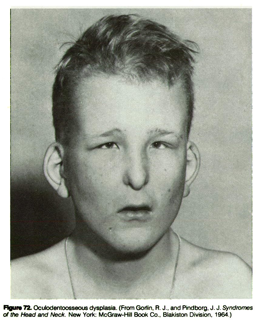 Figure 72. Oculodentoosseous dysplasia. (From Gorlin. R. J., and Pindborg, J. J. Syndromes of the Head and Neck. New York: McGraw-Hill Book Co., Blakiston Division, 1964.)