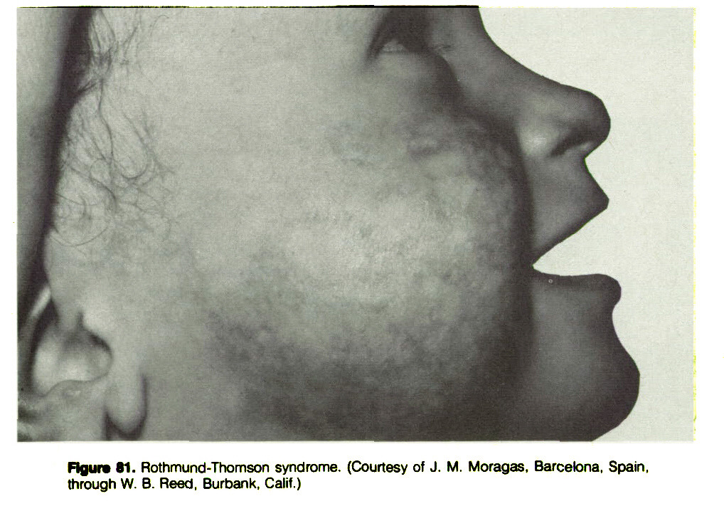 Figure 81. Rothmund-Thomson syndrome. (Courtesy of J. M. Moragas, Barcelona, Spain, through W. B. Reed, Burbank, Calif.)