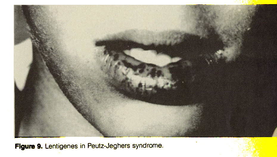 Figure 9. Lentigenes in Peutz-Jeghers syndrome.