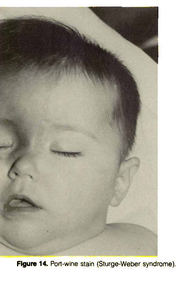 Figure 14. Port-wine stain (Sturge-Weber syndrome).