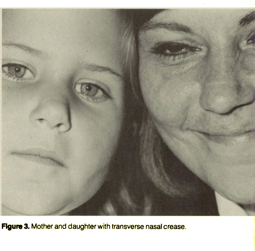 Figure 3. Mother and daughter with transverse nasal crease.