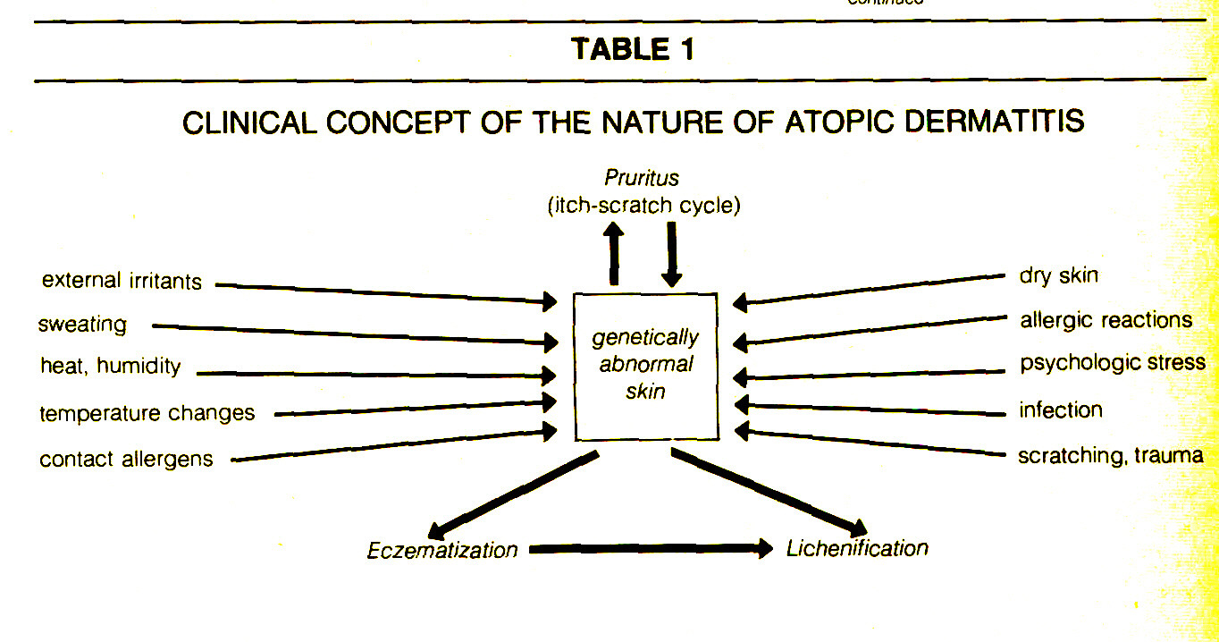 TABLE 1CLINICAL CONCEPT OF THE NATURE OF ATOPIC DERMATITIS