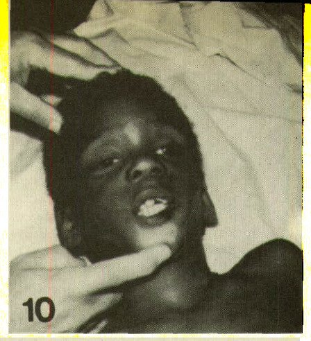 Figure 10. Reinforcement of commands, again by blows to face. Upper incisor is hanging, and there is ecchymosis and abrasion of the chin and ecchymosis of both cheeks. Patient expired. Note that there was no injury to nose, although history was that the child fell and face hit cement.