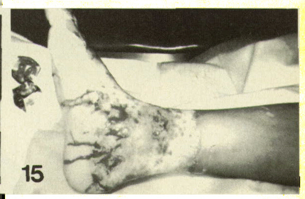 Figure 15. Forced immersion, with the burn well above the ankle and a clear circular line of demarcation between damaged and normal skin. Child's foot was forced into hot water to soak abscess of lower leg.