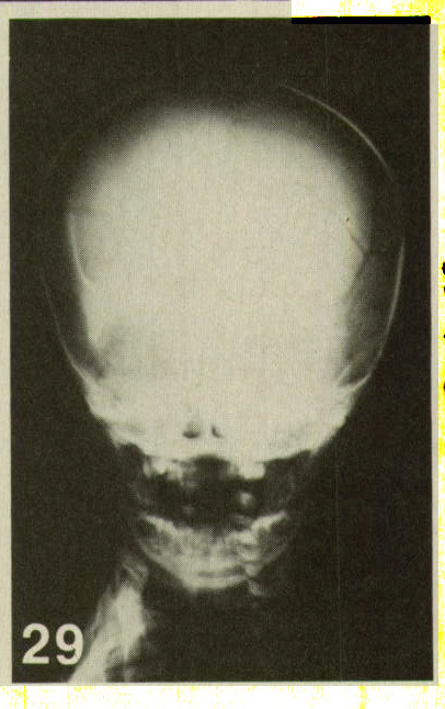 Figure 29. Large linear fracture of the skull. In infants with subdural hematoma, a skeletal survey is always indicated. In addition, a fundoscopic examination for retinal hemorrhage must be done. Violent physical injury to the head, as well as the whiplash shaken-infant syndrome, can lead to this combination.9·12