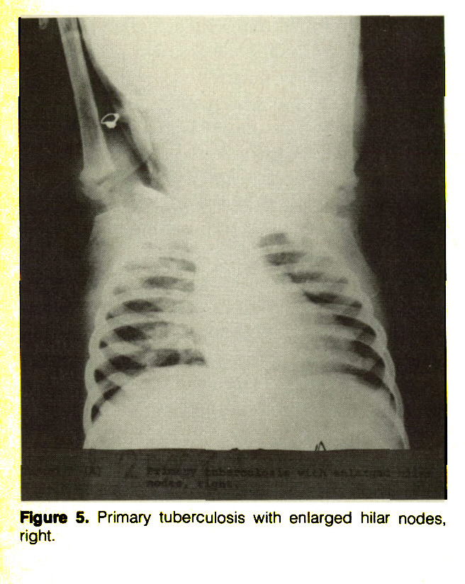 Figure 5. Primary tuberculosis with enlarged hilar nodes, right.