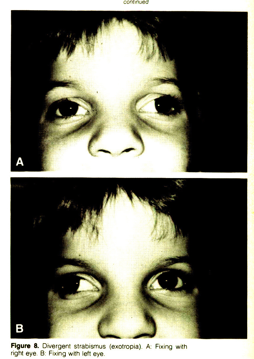 Figure 8. Divergent strabismus (exotropia). A: Fixing with right eye. B: Fixing with left eye.