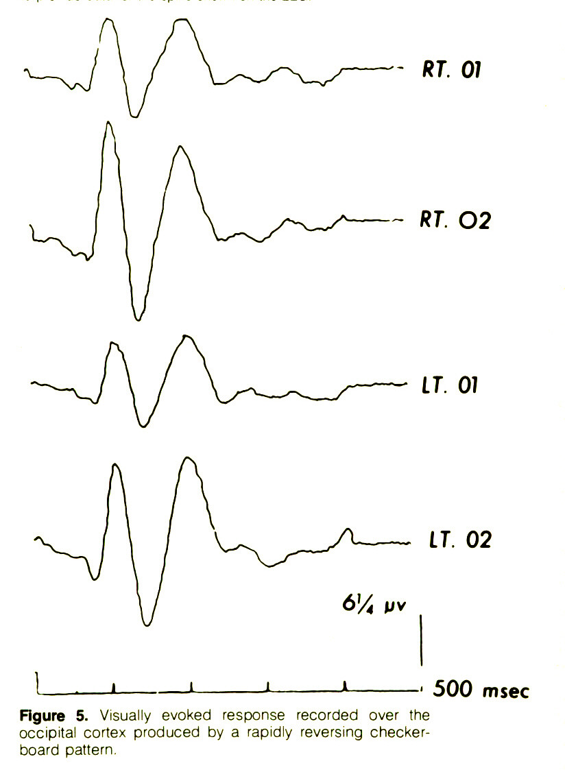 Figure 5. Visually evoked response recorded over the occipital cortex produced by a rapidly reversing checkerboard pattern.