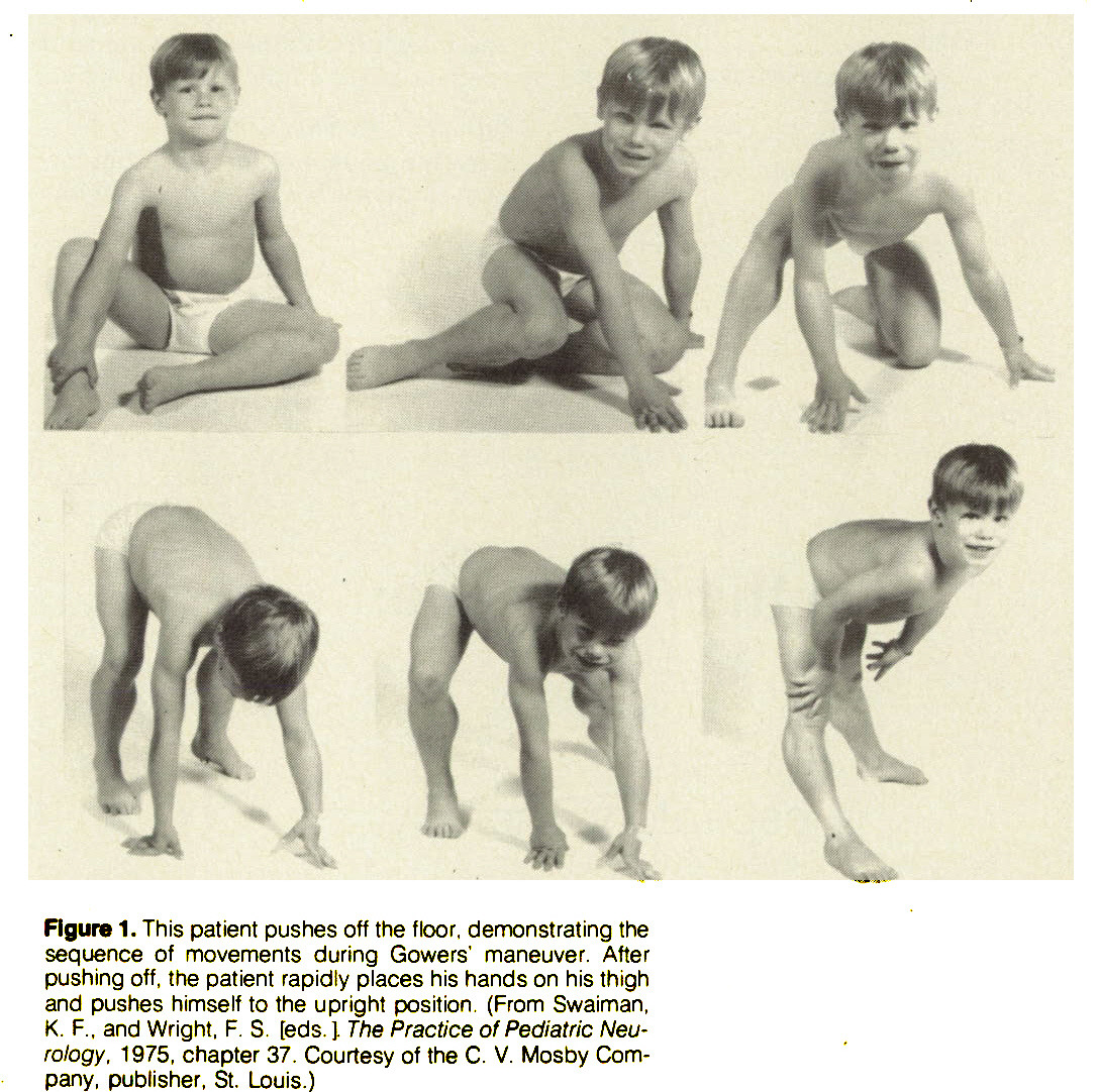 Figure 1. This patient pushes off the floor, demonstrating the sequence of movements during Gowers' maneuver. After pushing off, the patient rapidly places his hands on his thigh and pushes himself to the upright position. (From Swaiman, K. F., and Wright, F. S. [eds. J. The Practice of Pediatric Neurology. 1975, chapter 37. Courtesy of the C. V. Mosby Company, publisher, St. Louis.)