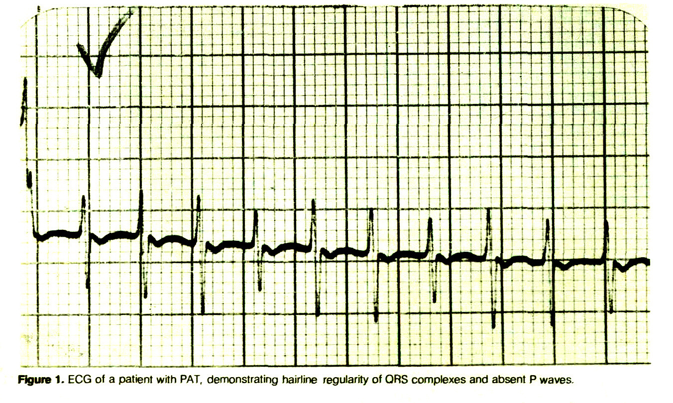 Figure 1. ECG of a patient with PAT, demonstrating hairline regularity of ORS complexes and absent P waves.