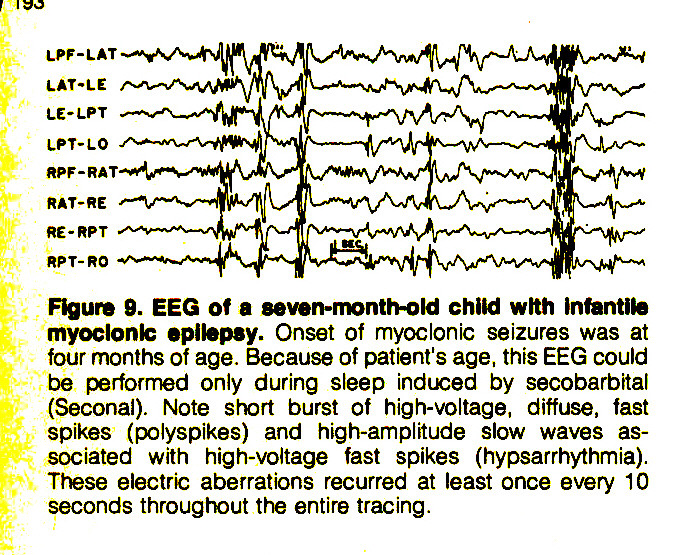 Figure T. EEG of a seven-month-old child with infantile myoclonic epilepsy. Onset of myoclonic seizures was at four months of age. Because of patient's age, this EEG could be performed only during sleep induced by secobarbital (Seconal). Note short burst of high-voltage, diffuse, fast spikes (polyspikes) and high-amplitude slow waves associated with high-voltage fast spikes (hypsarrhythmia). These electric aberrations recurred at least once every 10 seconds throughout the entire tracing.