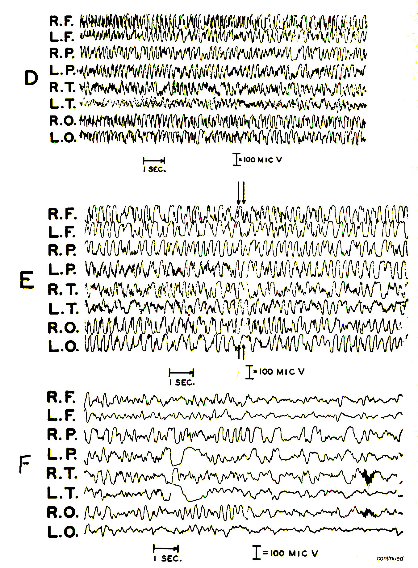 Figure 2. EEG of boy taken during generalized major-motor (grand mal) seizure. This five-year-old had a major-motor tonic seizure while the examination was being performed. The seizure began at the point marked by the arrow on 2-A and lasted for approximately one minute (2-B, C1 D, and E), terminating at the point marked with the double arrow on 2-E. The postconvulsive phase lasted about 10 minutes. It consisted of marked drowsiness and was characterized by high-voltage slow-wave activity, ending with the return of normal electrical activity (2-F).