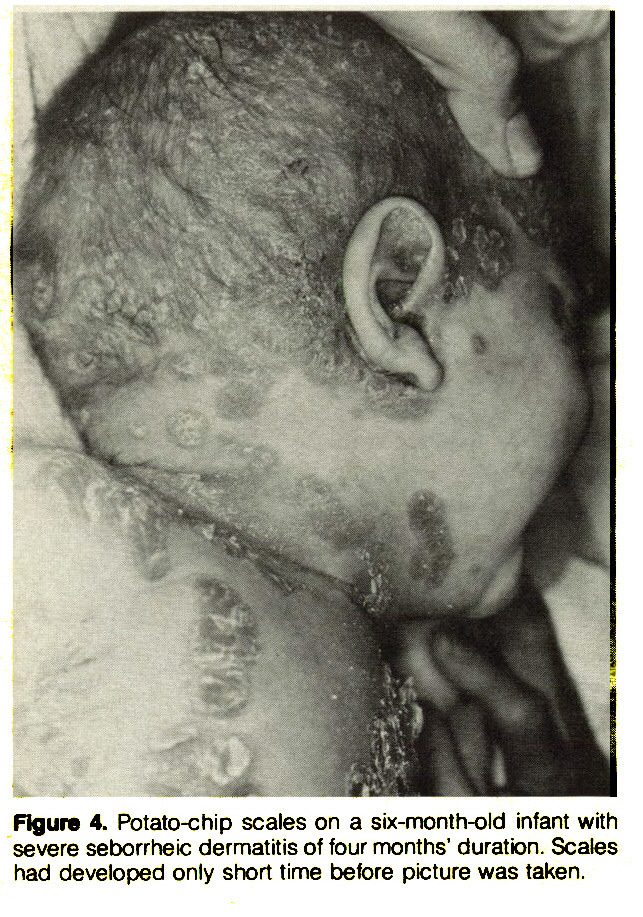 Figure 4. Potato-chip scales on a six-month-old infant with severe seborrheic dermatitis of four months' duratbn. Scales had developed only short time before picture was taken.