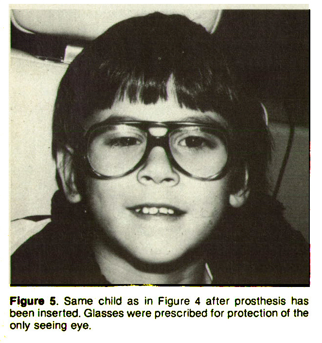Figure 5. Same child as in Figure 4 after prosthesis has been inserted. Glasses were prescribed for protection of the only seeing eye.
