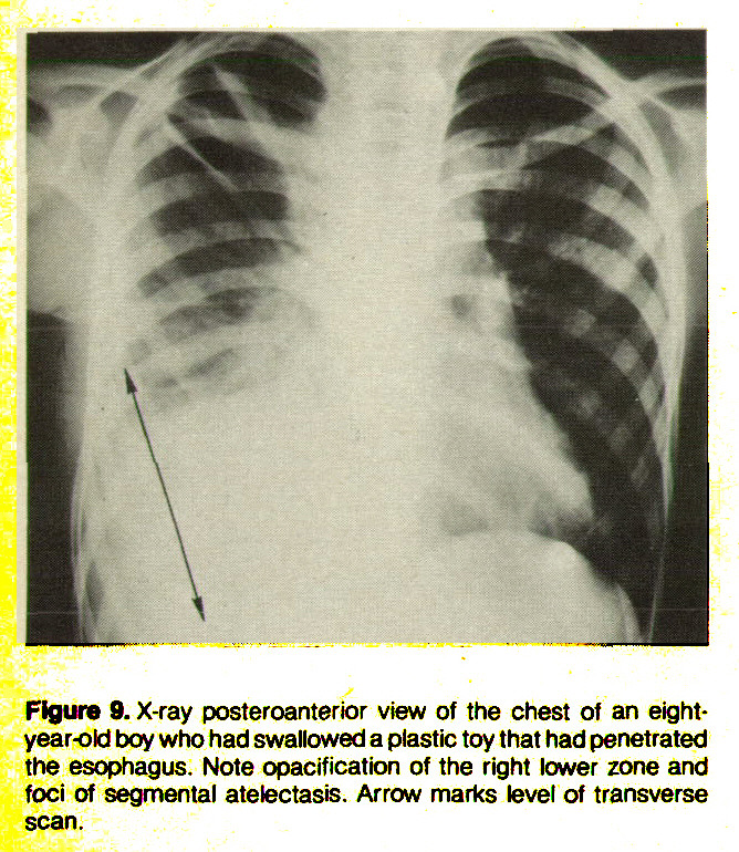 Figure 9. X-ray posteroanterior view of the chest of an eightyear-old boy who had swallowed a plastic toy that had penetrated the esophagus. Note opacification of the right lower zone and foci of segmentai atetectasis. Arrow marks level of transverse scan.