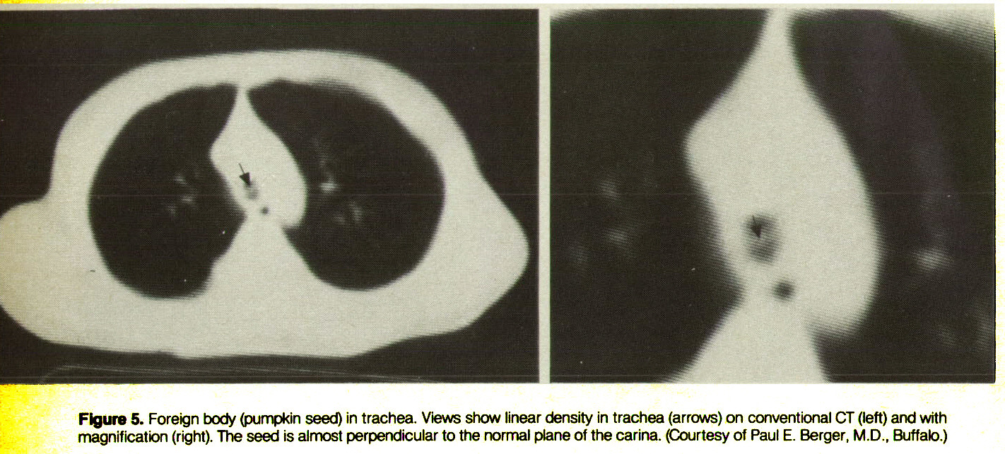 Figure 5. Foreign body (pumpkin seed) in trachea. Views show linear density in trachea (arrows) on conventional CT (left) and with magnification (right). The seed is almost perpendicular to the normal plane of the carina. (Courtesy of Paul E. Berger, M.D., Buffalo.)