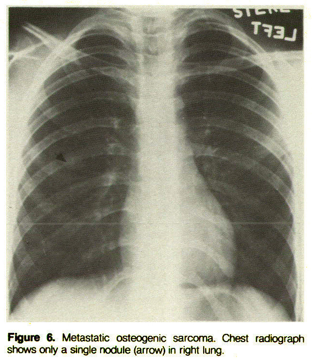 Figure 6. Metastatic osteogenic sarcoma. Chest radiograph shows only a single nodule (arrow) in right lung.