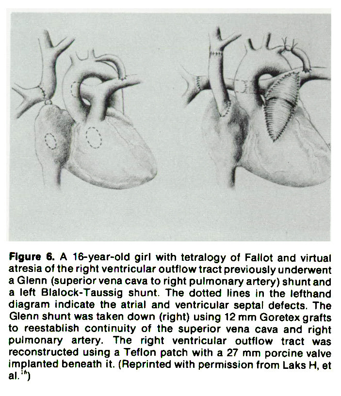 Figure 6. A 16-year-old girl with tetralogy of Fallot and virtual at res ia of the right ventricular outflow tract previously underwent a Glenn (superior vena cava to right pulmonary artery) shunt and a left Blalock-Taussig shunt. The dotted lines in the lefthand diagram indicate the atrial and ventricular septal defects, The Glenn shunt was taken down (right) using 12 mm Goretex grafts to reestablish continuity of the superior vena cava and right pulmonary artery. The right ventricular outflow tract was reconstructed using a Teflon patch with a 27 mm porcine valve implanted beneath it. (Reprinted with permission from Laks H, et al.15)