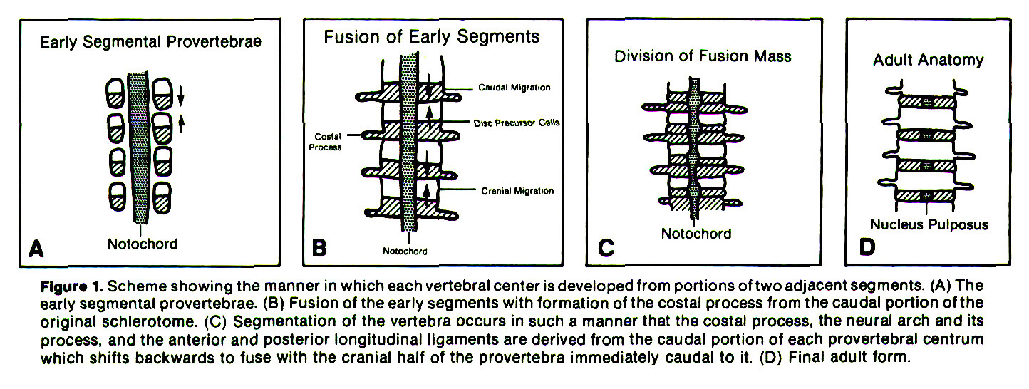 Figure 1. Scheme showing the manner in which each vertebral center is developed from portions of two adjacent segments. (A) The early segmental provertebrae. (B) Fusion of the early segments with formation of the costal process from the caudal portion of the original schlerotome. (C) Segmentation of the vertebra occurs in such a manner that the costal process, the neural arch and its process, and the anterior and posterior longitudinal ligaments are derived from the caudal portion of each prevertebral centrum which shifts backwards to fuse with the cranial half of the provertebra immediately caudal to it. (D) Final adult form.