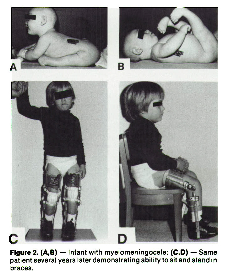 Figure 2. (A,B) - Infant with myelomeningocele; (C1D) - Same patient several years later demonstrating ability to sit and stand in braces.