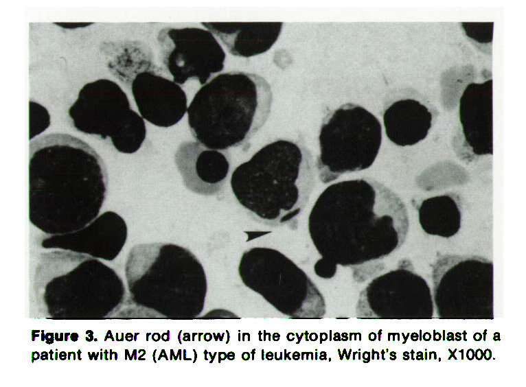 Figure 3. Auer rod (arrow) in the cytoplasm of myeloblast of a patient with M2 (AML) type of leukemia, Wright's stain, X1000.