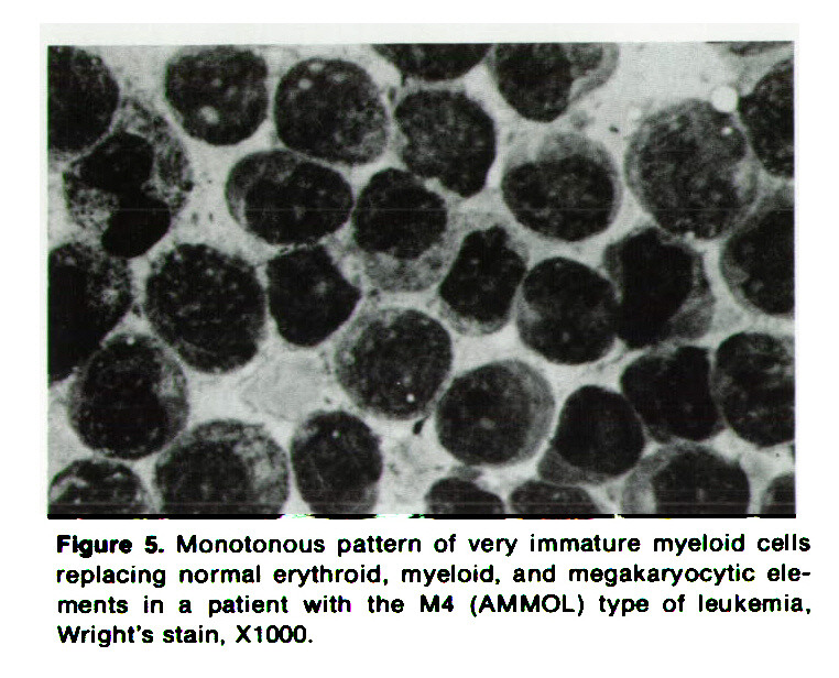 Figure 5. Monotonous pattern of very immature myeloid cells replacing normal erythroid, myeloid, and megakaryocytic elements in a patient with the M4 (AMMOL) type of leukemia, Wright's stain. XlOOO.