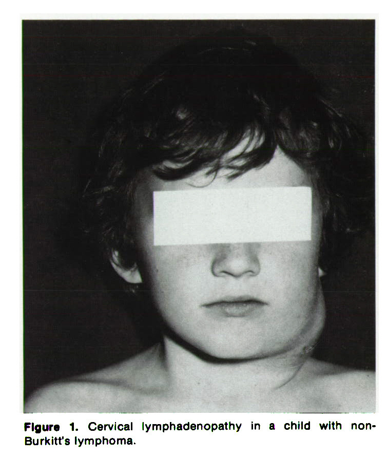 Figure 1. Cervical lymphadenopathy in a child with nonBurkitt's lymphoma.