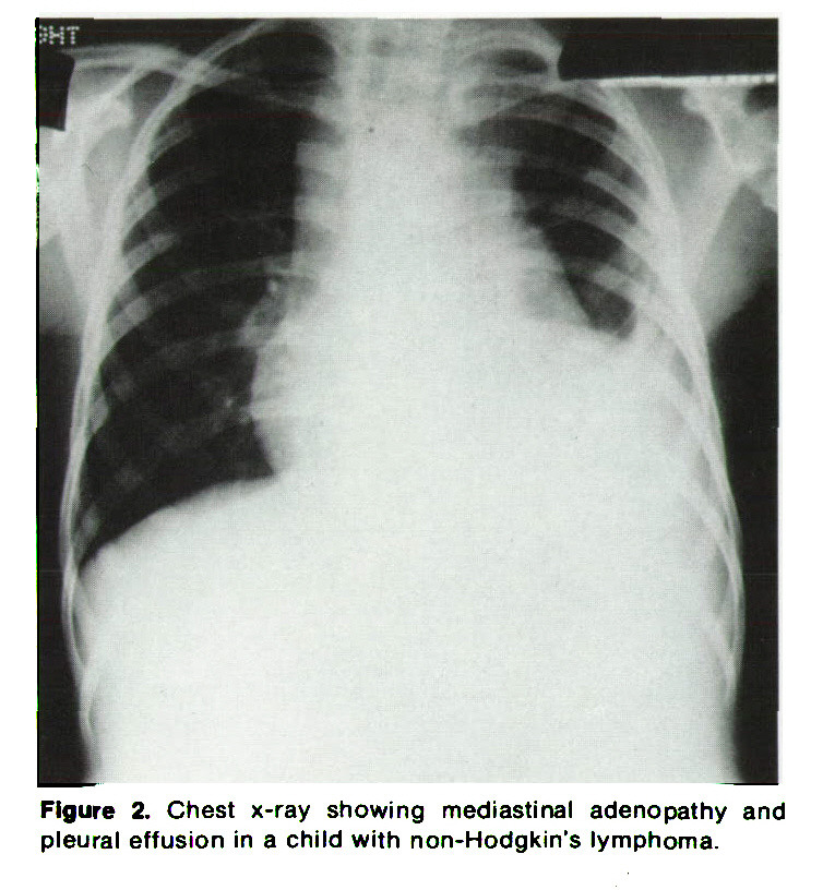 Figure 2. Chest x-ray showing mediastinal adenopathy and pleural effusion in a child with non-Hodgkin's lymphoma.