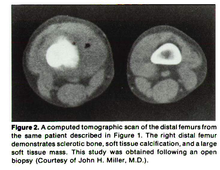 Figure 2. A computed tomographic scan of the distal femurs from the same patient described in Figure 1. The right distal femur demonstrates sclerotic bone, soft tissue calcification, and a large soft tissue mass. This study was obtained following an open biopsy (Courtesy of John H. Miller, M. D.).