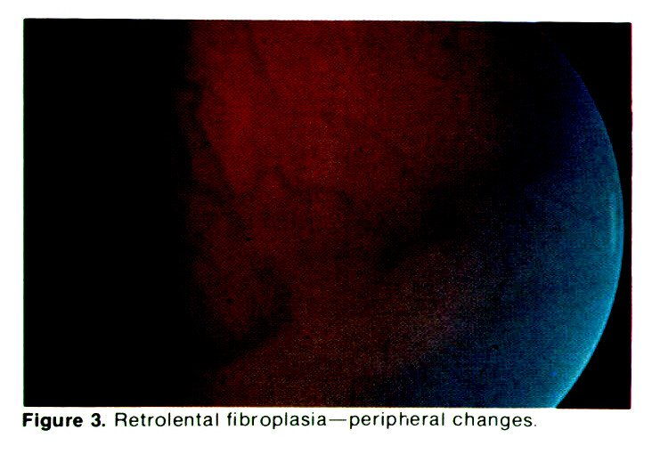 Figure 3. Retrolental fibroplasia-peripheral changes.