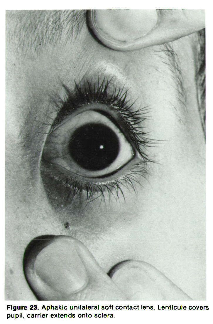 Figure 23. Aphakic unilateral soft contact lens. Lenticule covers pupil, carrier extends onto sclera.