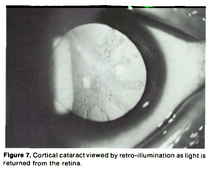 Figure 7. Cortical cataract viewed by retro-illumination as light is returned from the retina.