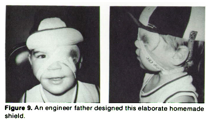 Figure 9. An engineer father designed this elaborate homemade shield.