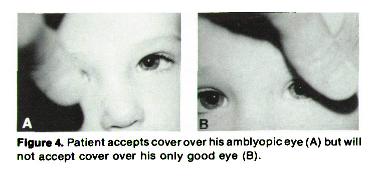 Figure 4. Patient accepts cover over his amblyopic eye (A) but will not accept cover over his only good eye (B).