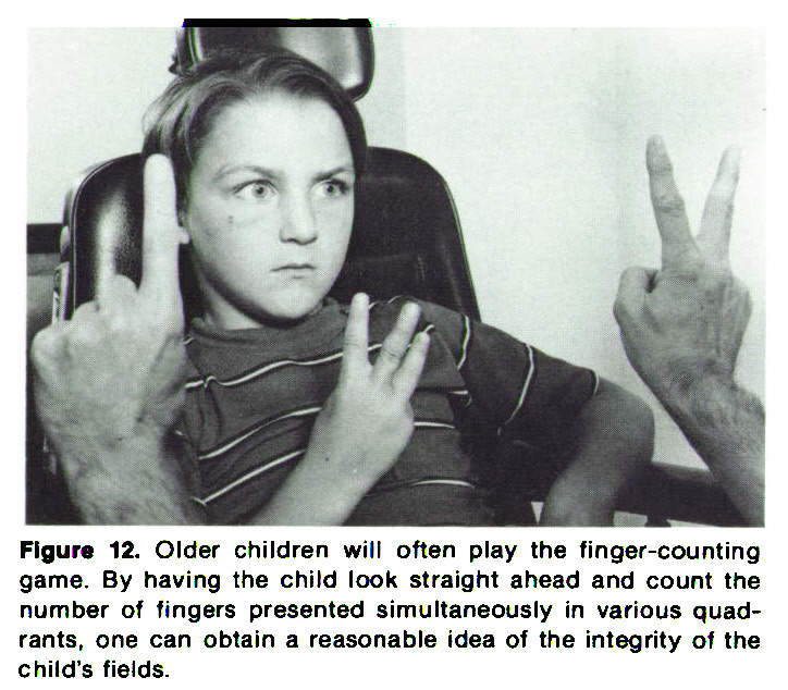 Figure 12. Older children will often play the finger-counting game. By having the child look straight ahead and count the number of fingers presented simultaneously in various quadrants, one can obtain a reasonable idea of the integrity of the child's fields.