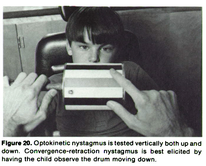 Figure 20. Optokinetic nystagmus is tested vertically both up and down. Convergence-retraction nystagmus is best elicited by having the child observe the drum moving down.
