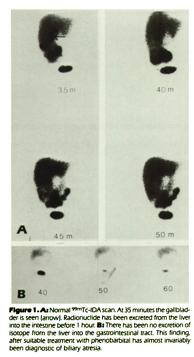 Figure 1. At Normal ^sup 99m^Tc-IDA scan. At 35 minutes the gallbladder is seen (arrow). Radionuclide has been excreted from the liver into the intestine before I hour. Bt There has been no excretion of isotope from the liver into the gastrointestinal tract. This finding, after suitable treatment with phenobarbital has almost invariably been diagnostic of biliary atresia.