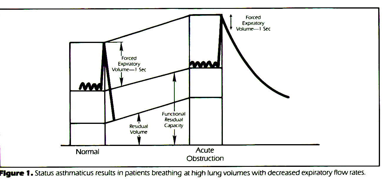 FIgure 1. Status asthmaticus results in patients breathing at high lung volumes with decreased expiratory flow rates.