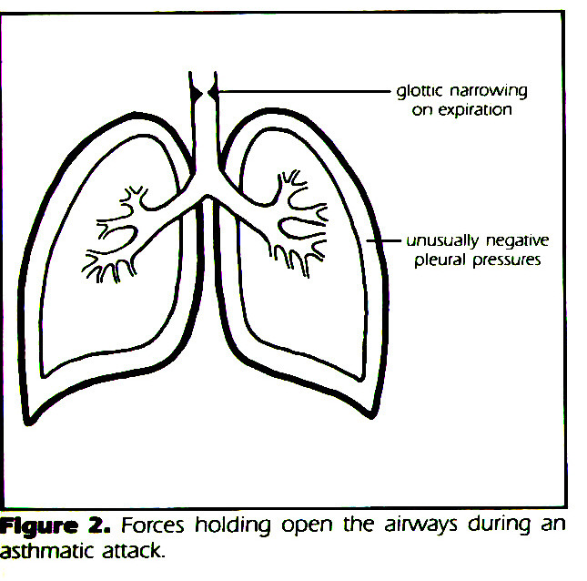 FIgure 2. Forces hoiding open the airways during an asthmatic attack.