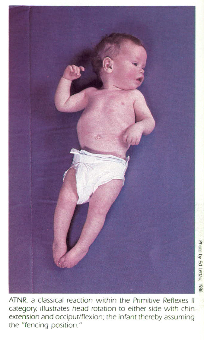"""ATNR, a classical reaction within the Primitive Reflexes Il category, illustrates head rotation to either side with chin extension and occiput/flexion; the infant thereby assuming the """"fencing position."""""""
