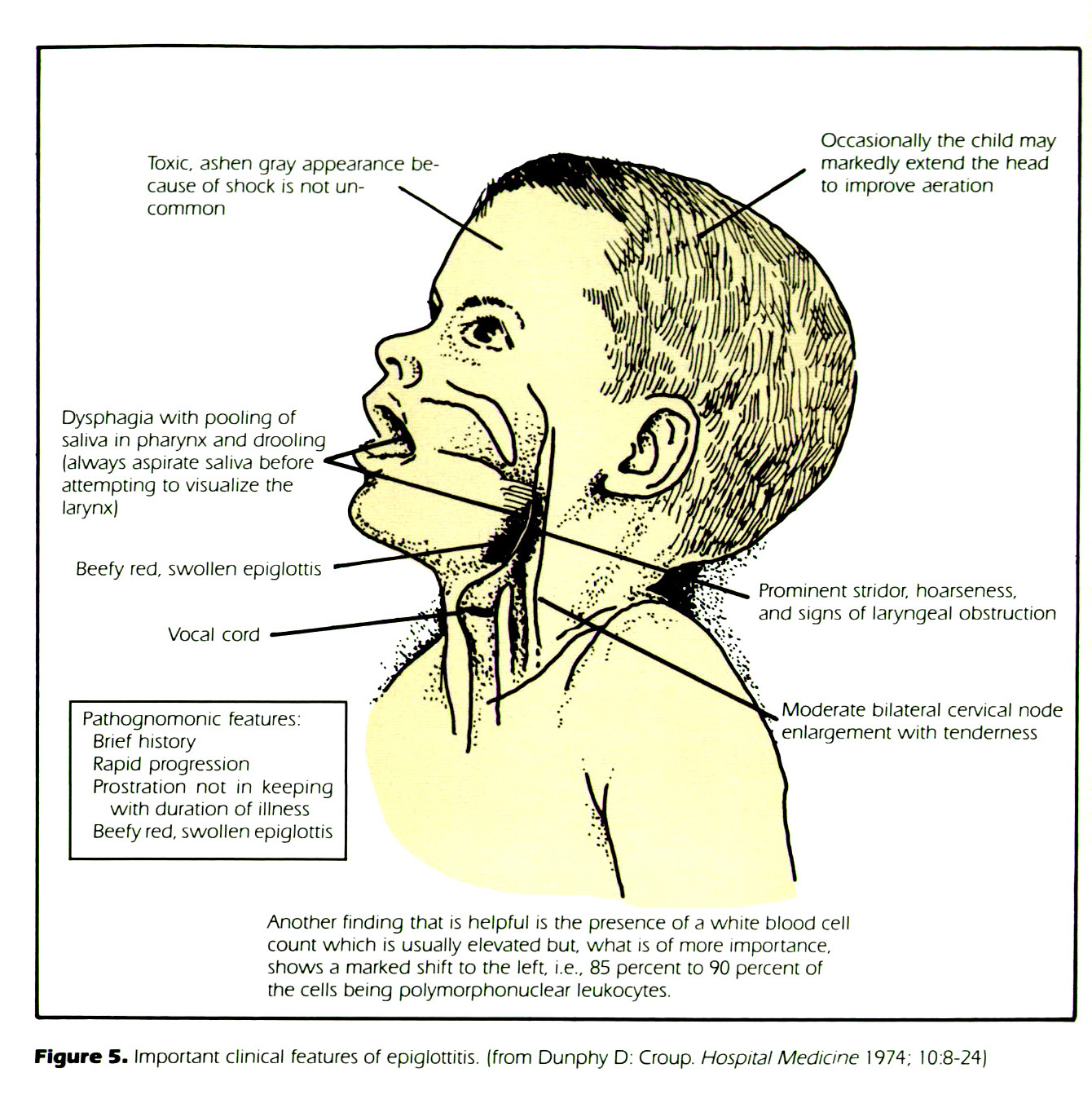Figure 5. Important clinical features of epiglottitis, (from Dunphy D: Croup. Hospital Medicine 1 974; 1 0:8-24)