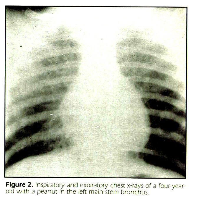 Figure 2. Inspiratory and expiratory chest x-rays of a four-yearold with a peanut m the left main stem bronchus.