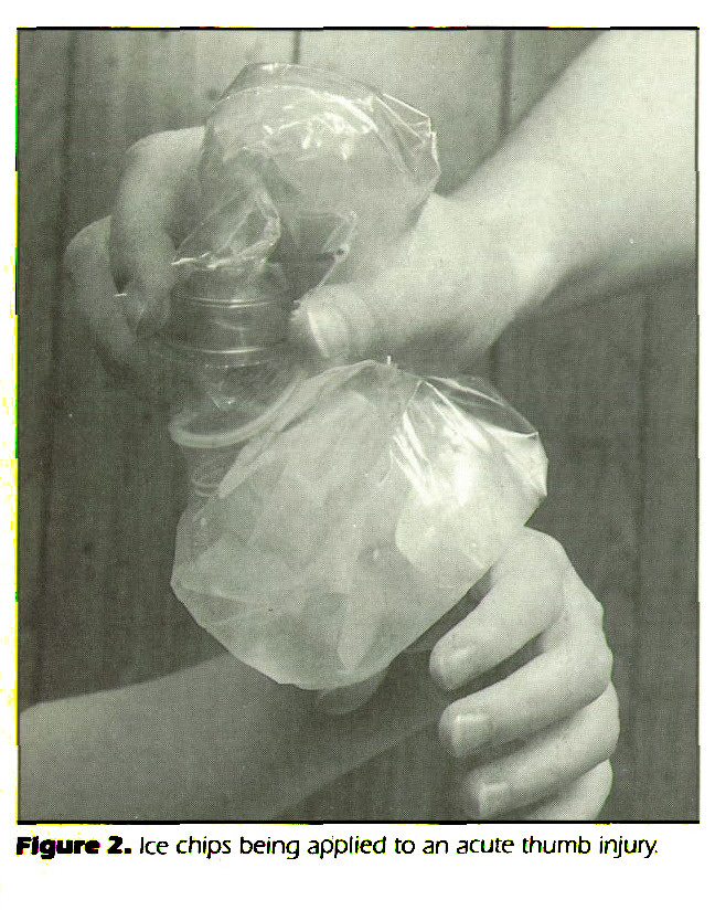 Figure 2. Ice chips being applied to an acute thumb injury