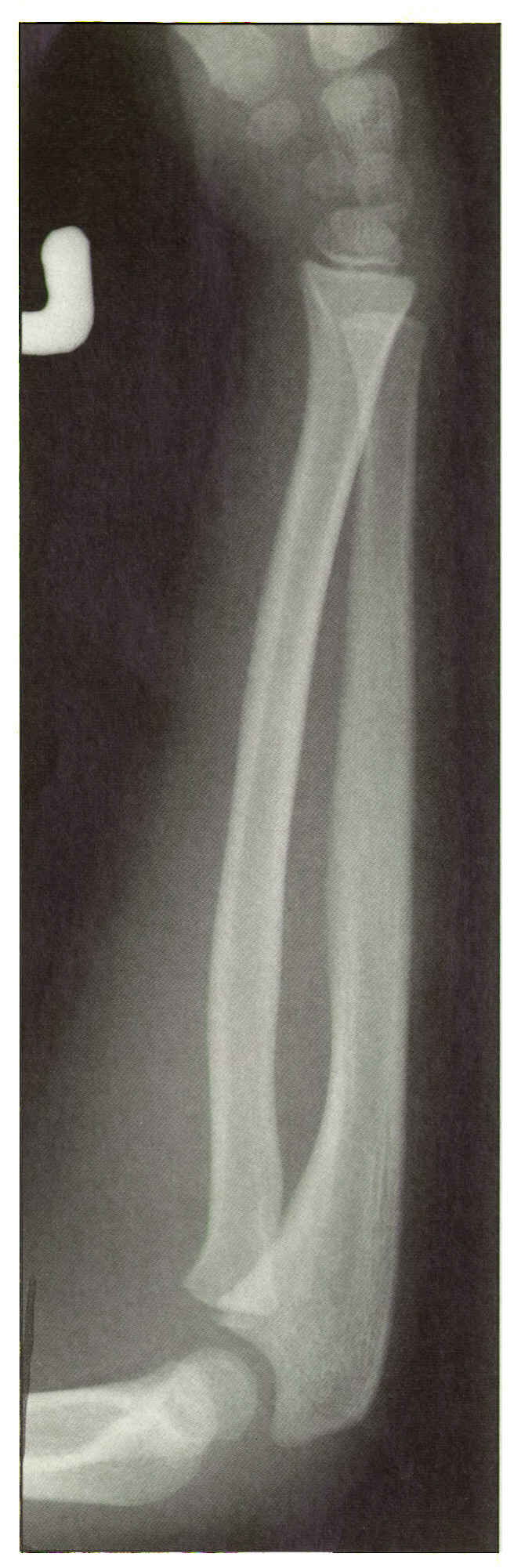 Figure 9. This is the fracture most likely to displace in children. It also has the greatest ability to remodel. However, parents do not think much of having a child with a temporarily crooked wrtst. To avoid this eventuality immobilize the fracture in full pronation or full supination and do not leave it in the midposition.
