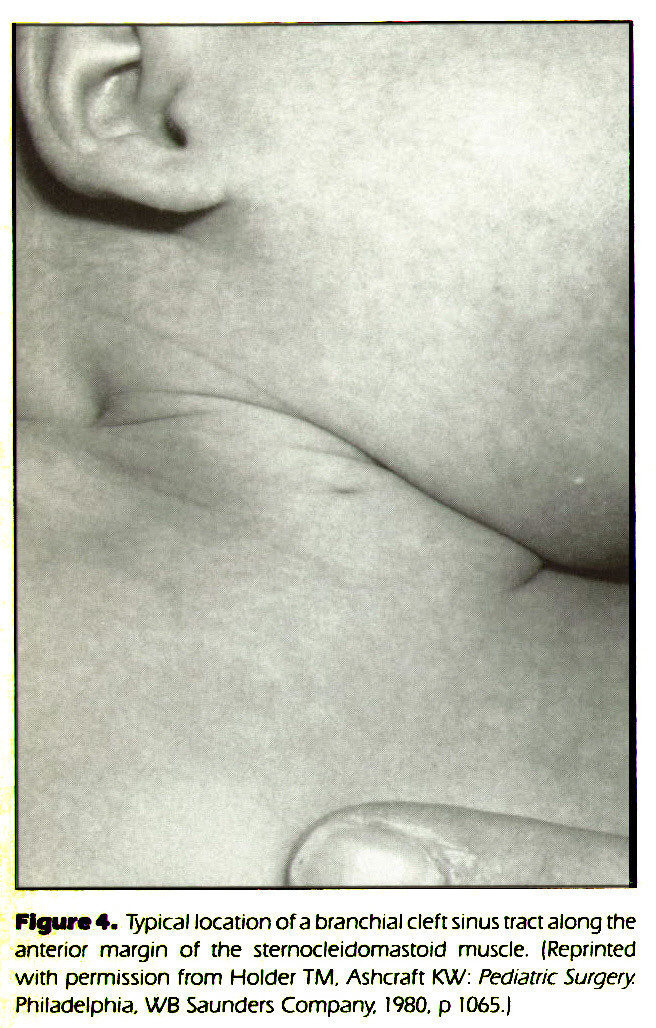 Figure 4. Typical location of a branchial cleft sinus tract along the anterior margin of rhe sternocleidomastoid muscle. (Reprinted with permission from Holder TM. Ashcraft KW: Pediatric Surgery. Philadelphia. WB Saunders Company !980. ? !065.)