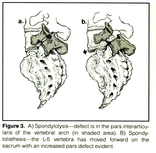 Figure 3. A) Spondylolysis - defect is in the pars interarticularis of the vertebral arch in shaded area). B) Spondylolisthesis - the L-5 vertebra has moved forward on the sacrum with an increased pars defect evident.