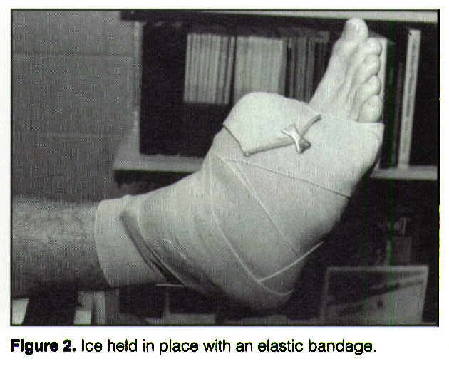Figure 2. Ice held in place with an elastic bandage.