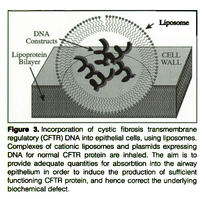 Figure 3. Incorporation of cystic fibrosis transmembrane regulatory (CFTR) DNA into epithelial cells, using liposomes. Complexes of cationic liposomes and plasmids expressing DNA for normal CFTR protein are inhaled. The aim is to provide adequate quantities for absorbtion into the airway epithelium in order to induce the production of sufficient functioning CFTR protein, and hence correct the underlying biochemical defect,