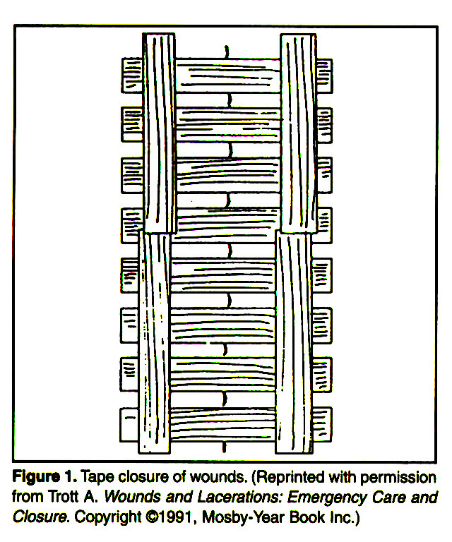 Figure 1 . Tape closure of wounds. (Reprinted with permission from Trott A. Wounds and Lacerations: Emergency Care and Closure. Copyright ©1 991, Mosby-Year Book Inc.)